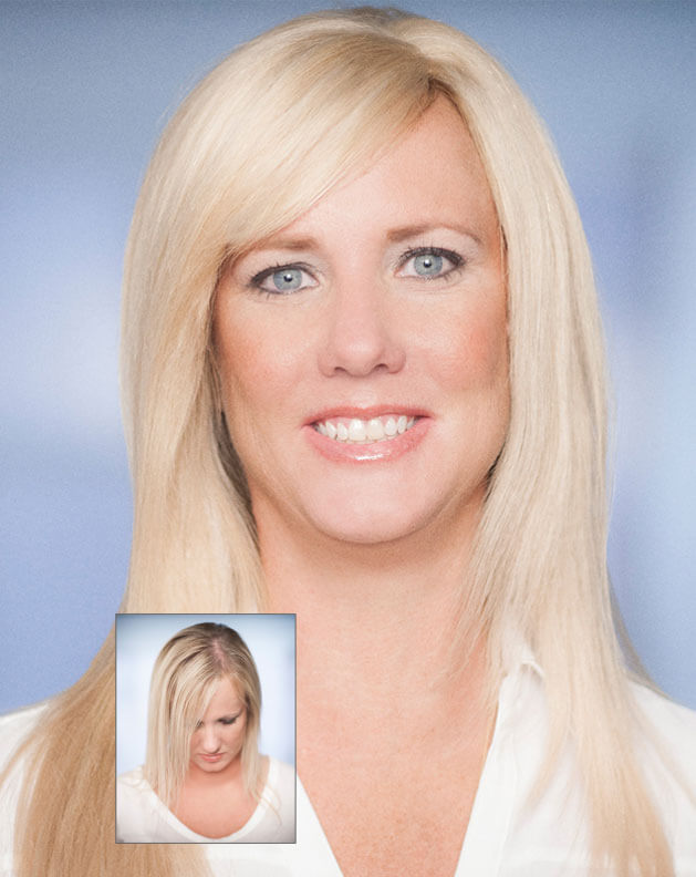 Hair Extensions Plus Specialists Evolve Extensions