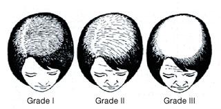 alopecia wigs saugus melrose revere north shore boston ma