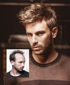 Boston mens hair replacement systems