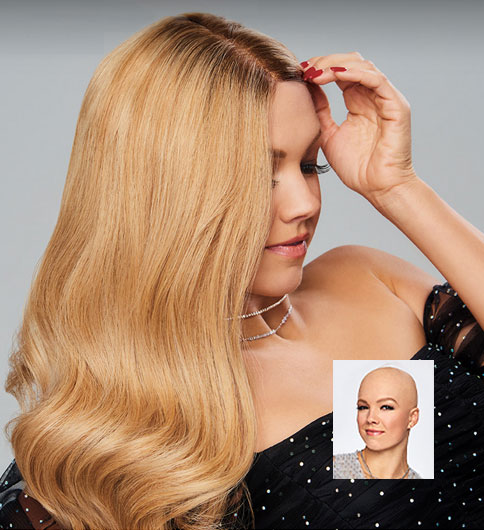 womens hair replacement systems boston mass